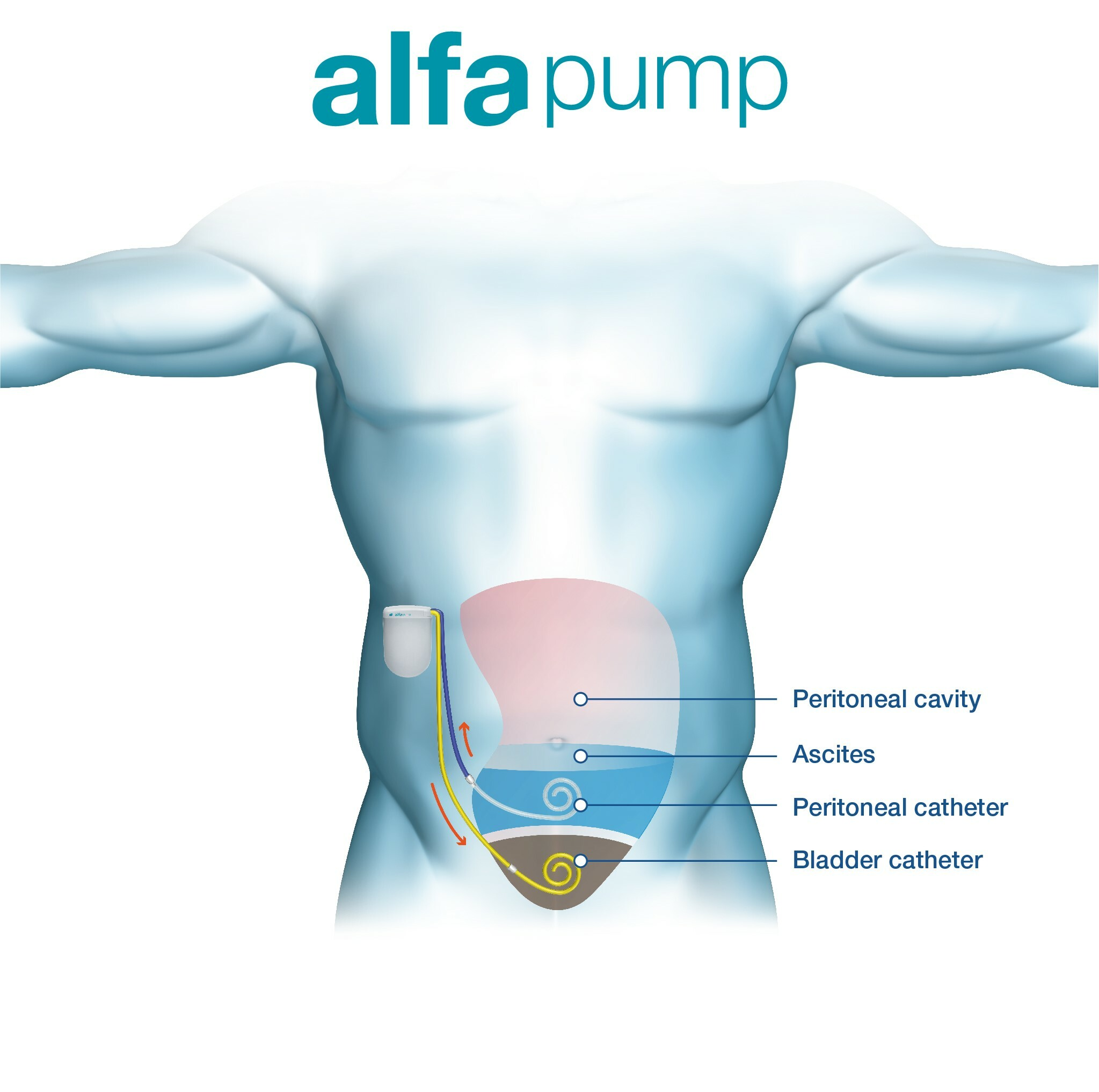 Torso_with_implanted_alfapump_and_explanation
